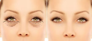 Before and after eyelid surgery picture of a woman's eyes