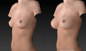 Vectra 3D Imaging