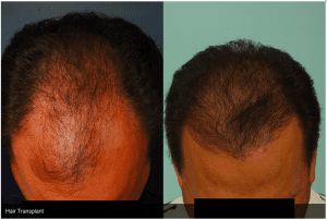 Dr. Agullo Hair Transplant Before and After Photos