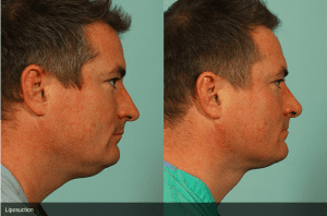 Before and After Male Neck Liposuction