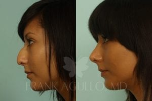 rhinoplasty-before-and-after-agullo-case-1-2