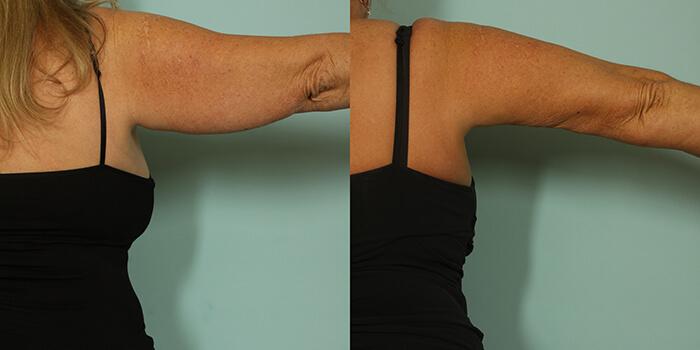arm-lift-2