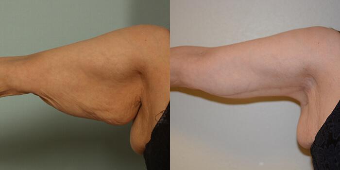 arm-lift-3