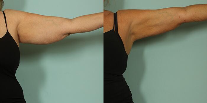 arm-lift-4
