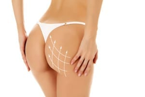 Female buttocks in a white thong with a grid of white arrows pointing upward