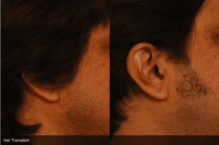 Facial Hair Transplant, Before and after