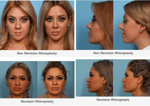 Non Revision and Revision Rhinoplasty