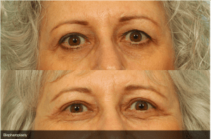 Before and After Eyelift Surgery