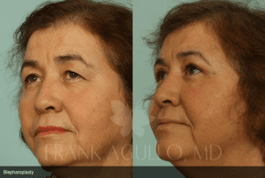 Before and After Blepharoplasty