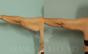 How to Tone Your Arms After Massive Weight Loss