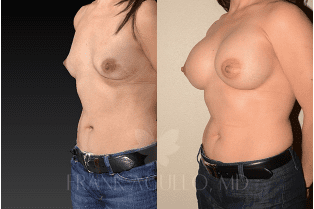 Get Fuller, Rounder Breasts With the New Natrelle INSPIRA® Round Gel Breast Implants