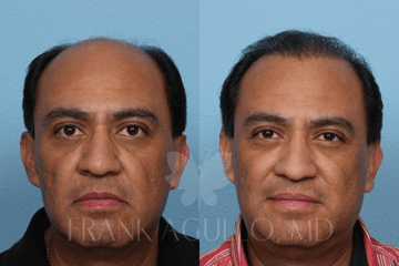 Hair transplant male patient 2 before and after by Dr. Agullo