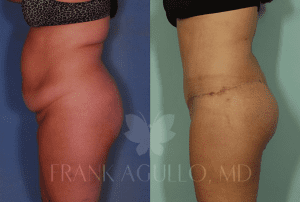 Dr. Agullo Body Lift Patient