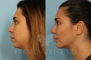 Buccal Fat Pad Removal by Dr. Agullo