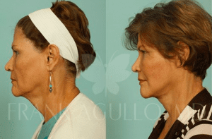 Dr. Agullo Necklift Patient before and after photos