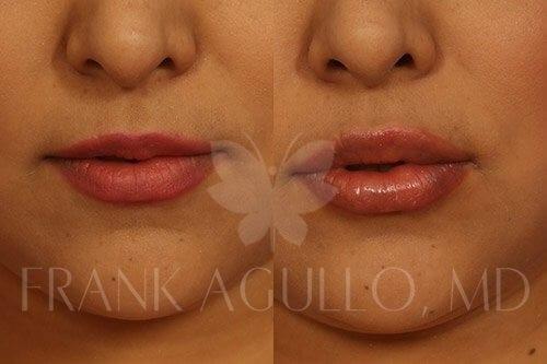 lip-augmentation-agullo-case-2-1-img-blog