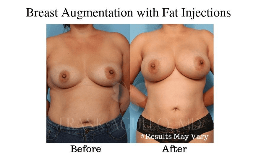 Before and after image showing results of a breast augmentation using fat injections in El Paso, Texas.