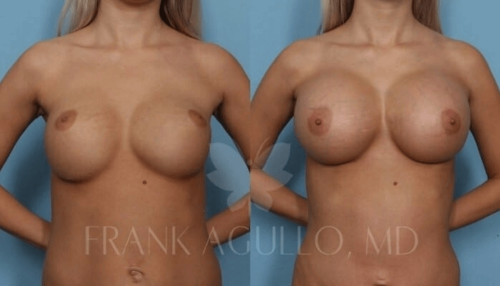 Before and after imaging showing the results of a breast revision performed in El Paso, TX.