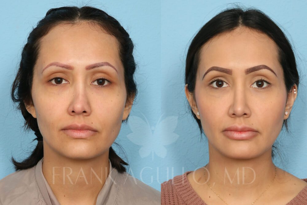 Before and after image showing the results of a revision rhinoplasty performed in El Paso, TX.