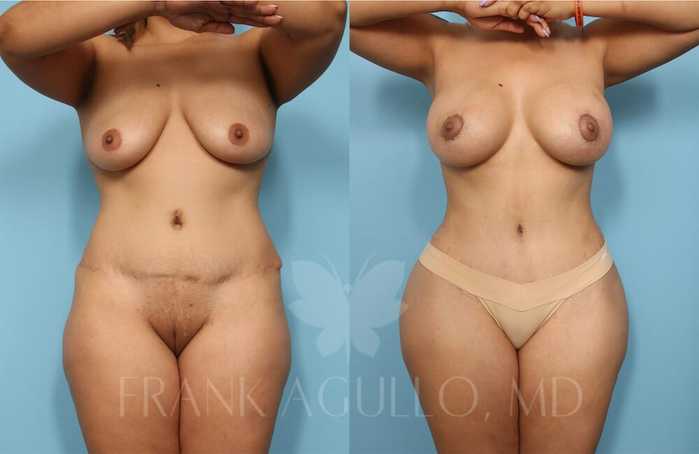 Before and after image showing the results of a tummy tuck revision performed in El Paso, TX.