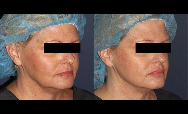 thread facelift before and after 2
