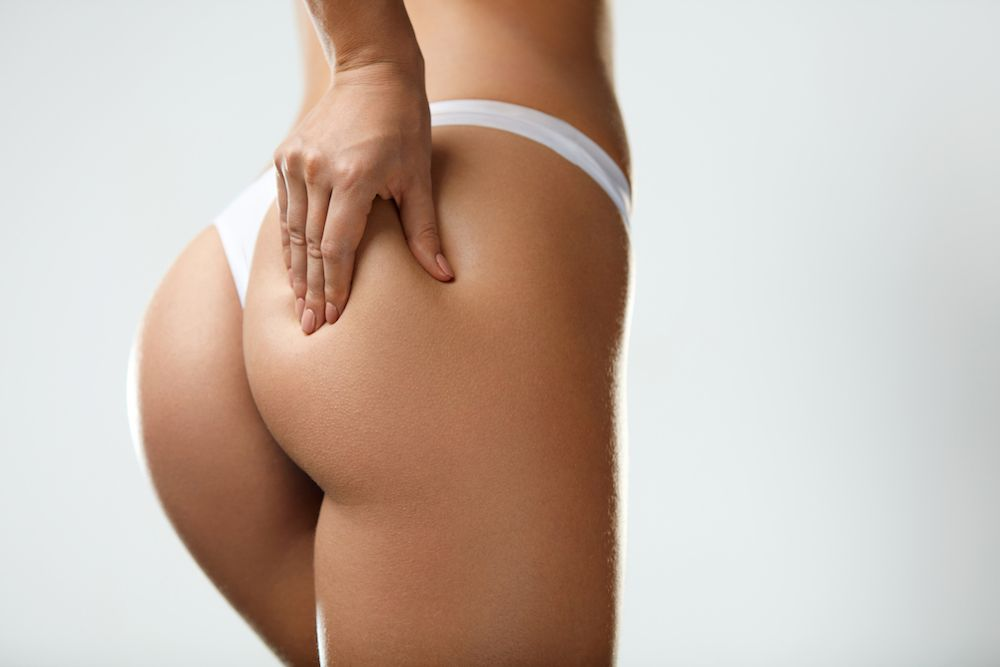 a woman with butt augmentation considering a butt augmentation revision