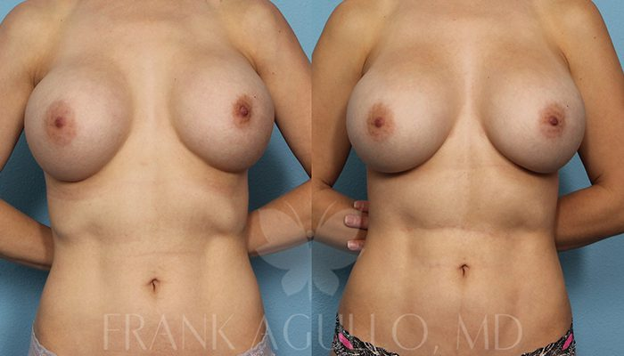 Breast Revision Before and After 14