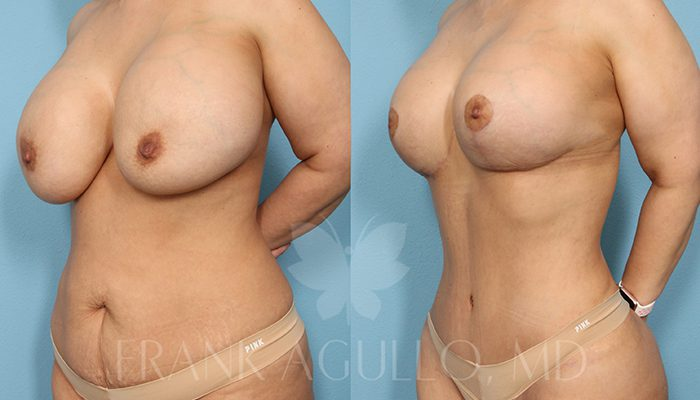 Breast Revision Before and After 15