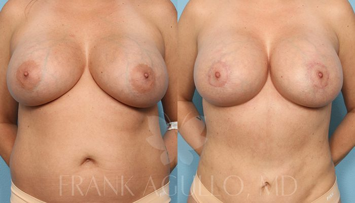 Breast Revision Before and After 16