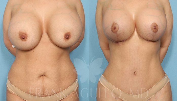 Breast Revision Before and After 17