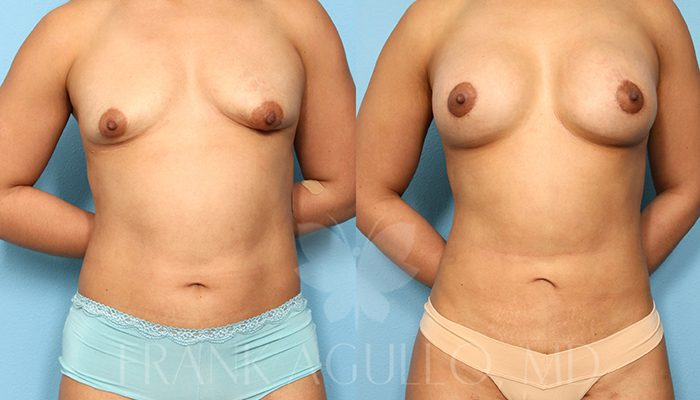 Breast Revision Before and After 18