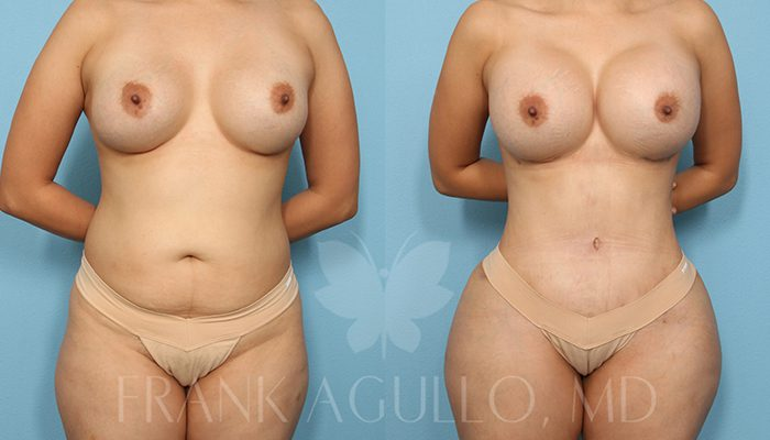 Breast Revision Before and After 19
