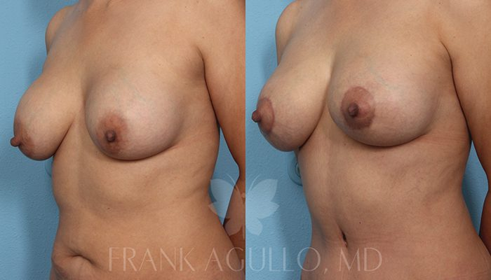 Breast Revision Before and After 4