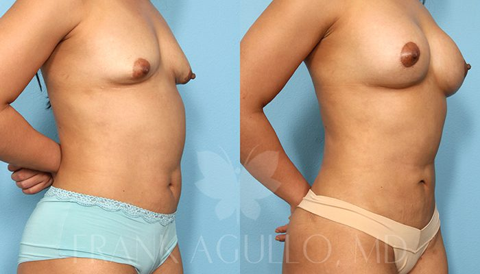 Breast Revision Before and After 6