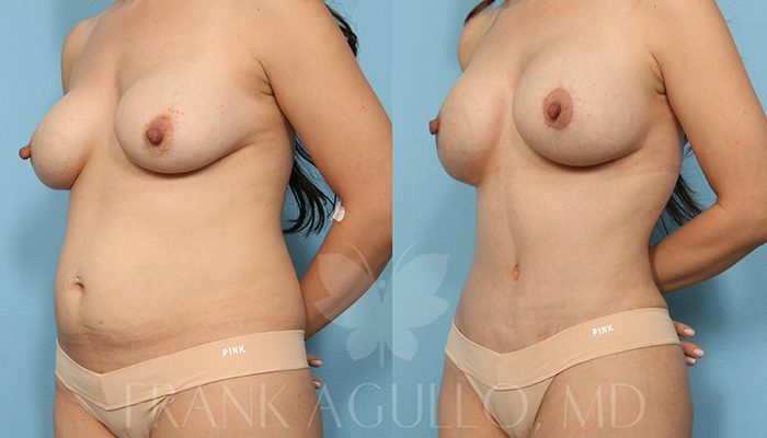 Breast Revision Before and After 8