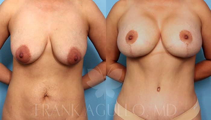 Breast Revision Before and After 10