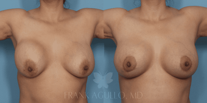 Breast Revision Before and After 11