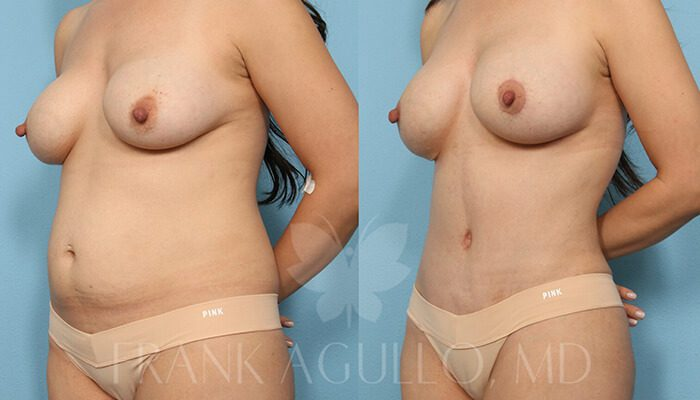 Breast Revision Before and After 20