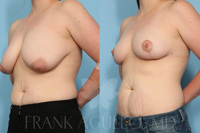 Breast Reduction Before and After 9