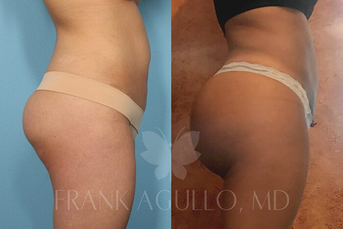 Butt Implants Before and After 8