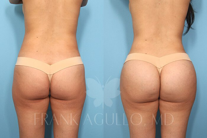 Butt Implants Before and After 9