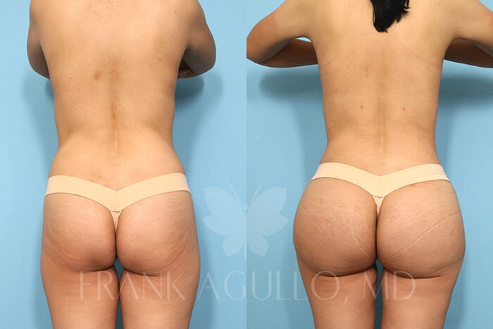 Butt Implants Before and After 11