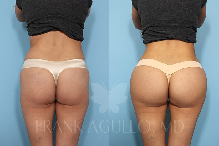 Butt Implants Before and After 14
