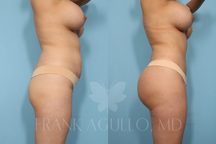 Butt Implants Before and After 16