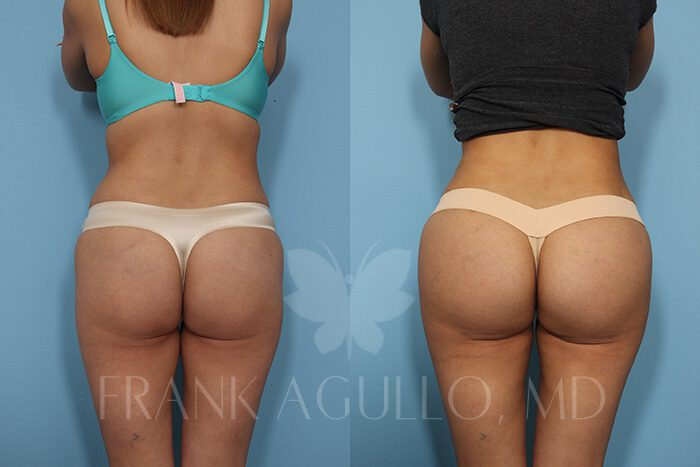 Butt Implants Before and After 17