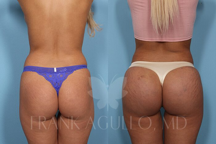 Butt Implants Before and After 19