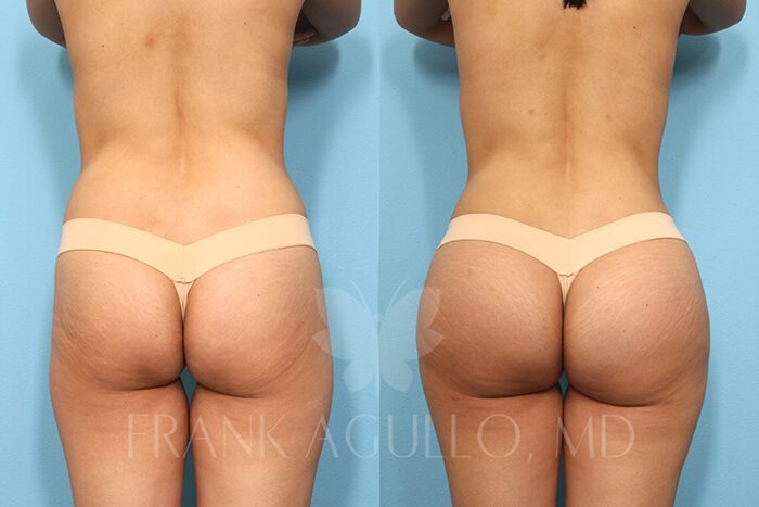 Butt Implants Before and After 20