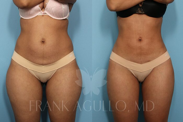 Liposuction Before and After 13