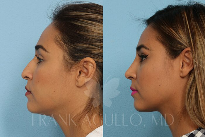 Rhinoplasty Before and After 9