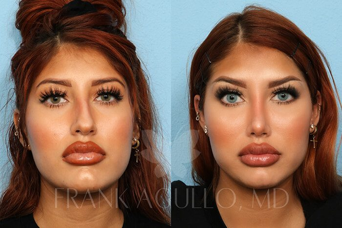 Rhinoplasty Before and After 11